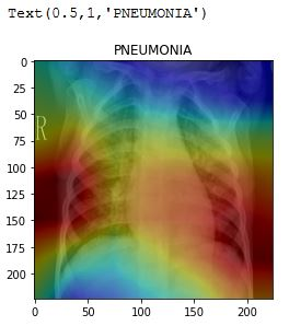Detecting and Localizing Pneumonia from Chest X-Ray Scans